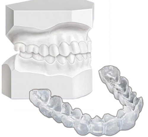 Làm trắng răng cấp tốc tại nhà 2