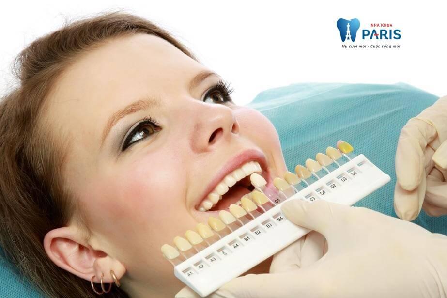 Phủ trắng răng là gì? Có tác dụng gì không?