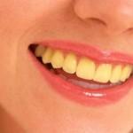 7 nguyên nhân gây vàng răng cơ bản