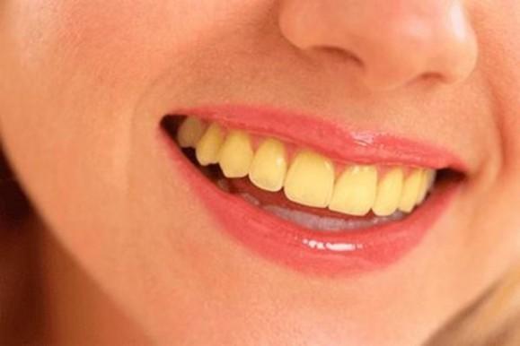 Cách chữa răng đen do uống café tốt nhất - Răng trắng sáng chỉ sau 1h 1