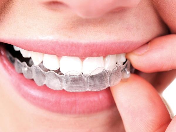 Các cách làm trắng răng tại nhà đơn giản CỰC HIỆU QUẢ 2017 2