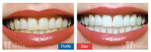 Các cách làm trắng răng tại nhà đơn giản CỰC HIỆU QUẢ 2017 1