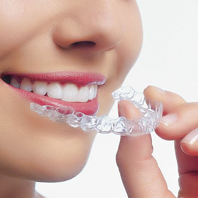 Giá làm máng tẩy trắng răng bao nhiêu hợp lý? 1