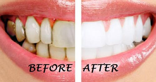 Gợi ý những cách làm trắng răng an toàn nhất