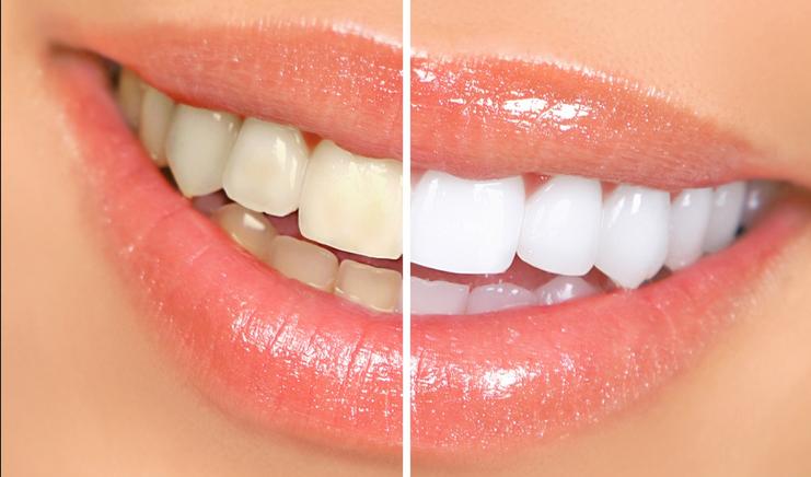 Làm răng thẩm mỹ đẹp tự nhiên với CN tẩy trắng răng WhiteMax 5
