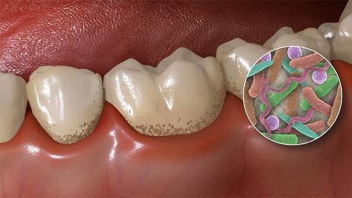Cao răng màu đen có hại không? Cách lấy cao răng hiệu quả