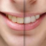 Làm sao để răng hết ố vàng và sáng đẹp nhanh nhất?
