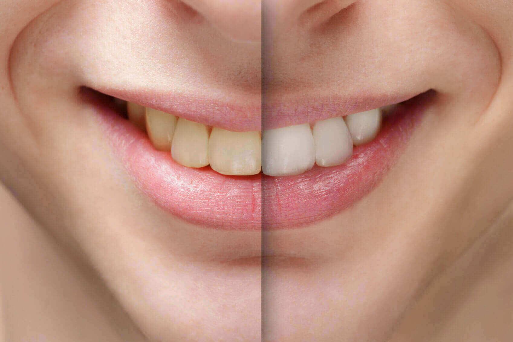 Kết quả hình ảnh cho Răng bị ngả màu do nhiều nguyên nhân khác nhau