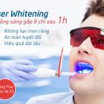 Cách làm trắng răng do hút thuốc lá hiệu quả nhất