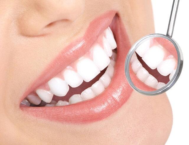 Tẩy trắng răng bằng công nghệ Laser Whitening 3