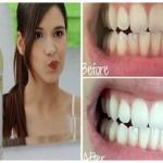 Cách làm trắng răng bằng dầu dừa – Răng trắng sau 30 phút