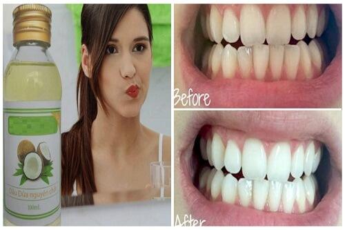 Mẹo cực hay làm trắng răng bằng dầu dừa hiệu quả 2
