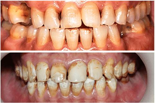 Răng bị vàng từ bên trong có tẩy trắng được không? 1