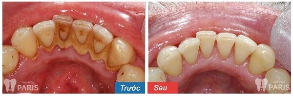 Lấy cao răng bao nhiêu tiền CHUẨN nhất? 3