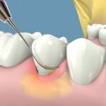 Lấy cao răng bao nhiêu tiền hợp lý nhất?
