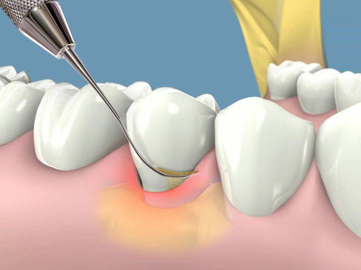 Lấy cao răng bao nhiêu tiền tại nha khoa Paris
