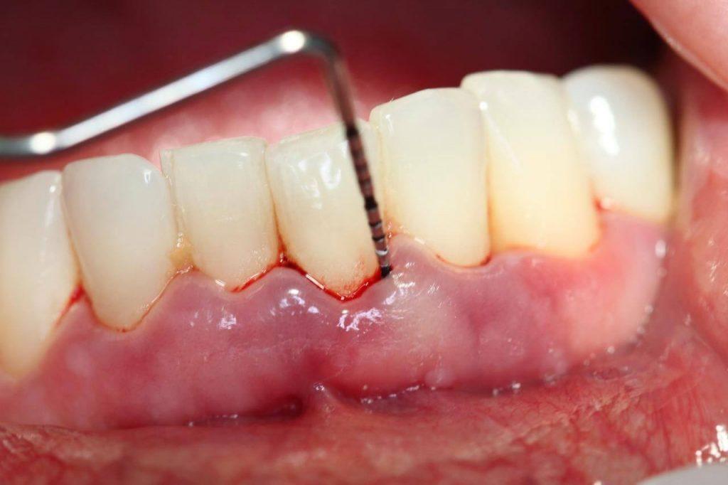 Lấy cao răng bao nhiêu tiền hợp lý nhất? 2
