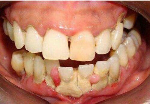 Chia sẻ kinh nghiệm tẩy trắng răng từ A - Z BẠN KHÔNG NÊN BỎ QUA 1