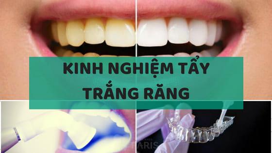 Chia sẻ kinh nghiệm tẩy trắng răng từ A - Z BẠN KHÔNG NÊN BỎ QUA