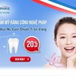 Thẩm mỹ răng công nghệ Pháp chuẩn tỉ lệ vàng ưu đãi tới 20%