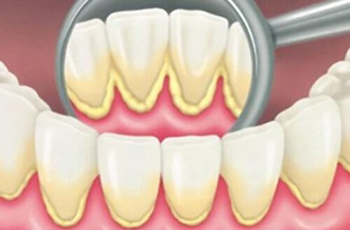 Cạo vôi răng là gì và thực hiện như thế nào? 1