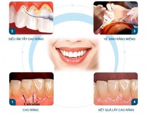 Bật mí về quy trình cạo vôi răng an toàn nhất hiện nay 3