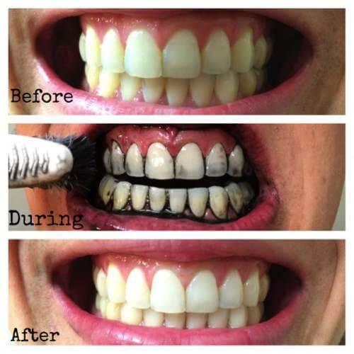 """Cách làm trắng răng bằng than tại nhà hiệu quả """"CẤP TỐC"""" 2"""