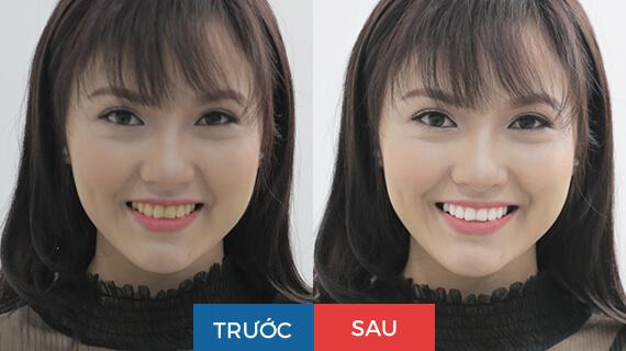 Hình ảnh khách hàng trước và sau khi tẩy trắng răng 1 lần tại nha khoa Paris
