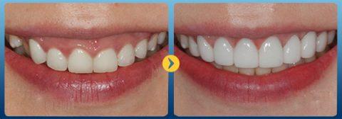 Răng trắng như sao Hàn nhờ bọc răng sứ