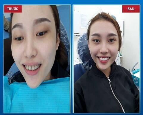 Bí quyết răng trắng như sao Hàn nhờ dán sứ Veneer.