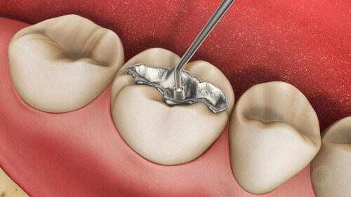 Tổng hợp những lưu ý sau khi tẩy trắng răng không thể bỏ qua 2