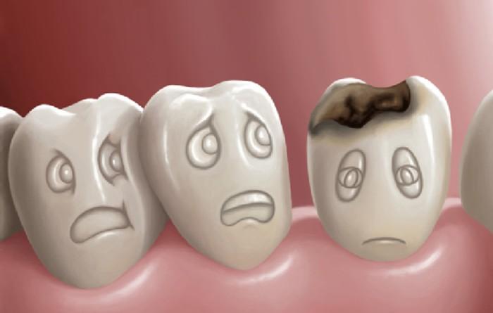 Có nên tẩy trắng răng sâu hay không? Giải đáp từ chuyên gia 1
