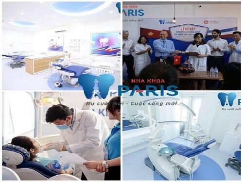 Nha khoa Paris – Địa chỉ tẩy trắng răng uy tín nhất Hà Nội