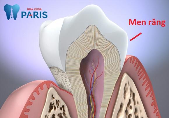 Tẩy trắng cho men răng xấu có làm răng đẹp hơn không? 1