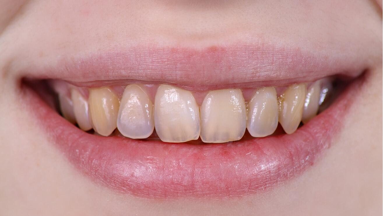 Tẩy trắng cho men răng xấu có làm răng đẹp hơn không? 4