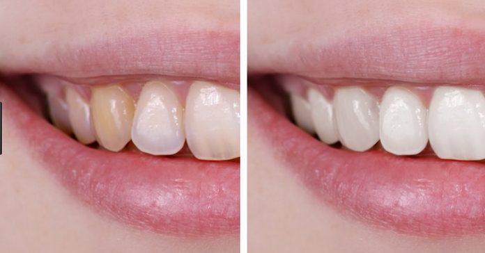 Tẩy trắng cho men răng xấu có làm răng đẹp hơn không? 2