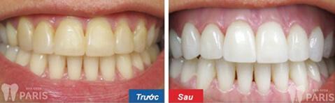 Khách hàng trải nghiệm công nghệ tẩy trắng răng WhiteMax tại nha khoa Paris_Ảnh 5