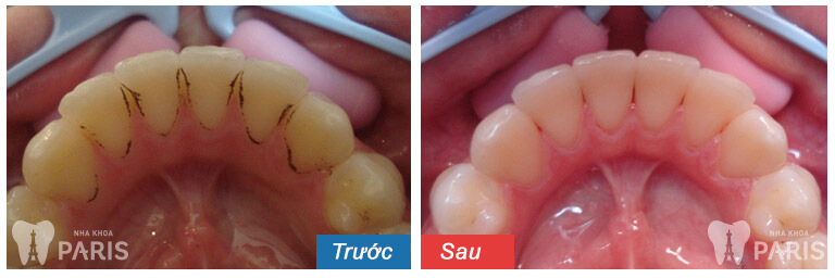 Lấy cao răng có làm trắng răng không? Chuyên gia giải đáp 5