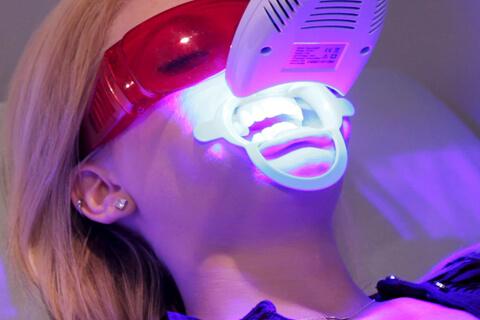 Làm răng thẩm mỹ đẹp tự nhiên với CN tẩy trắng răng WhiteMax 2