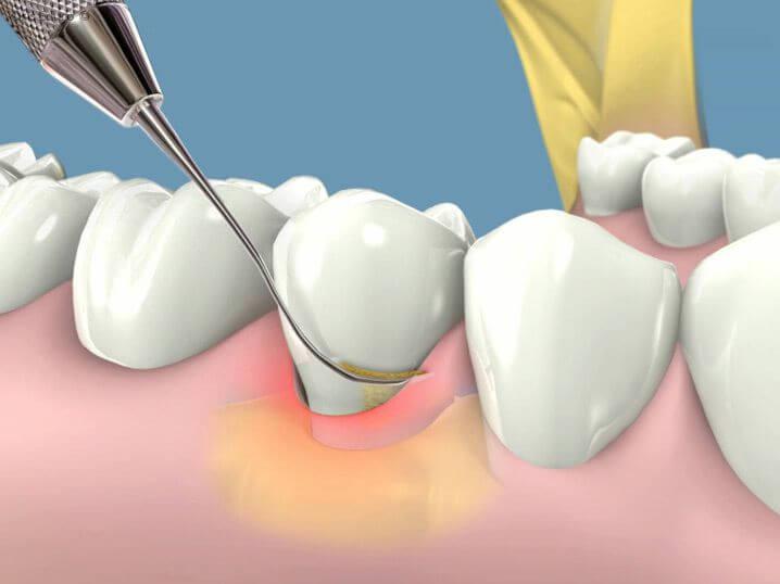 Cạo vôi răng có làm trắng răng không và hiệu quả không? 1