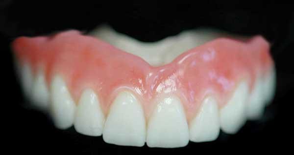 Nguyên nhân ê buốt răng sau khi tẩy trắng và cách khắc phục vĩnh viễn 2