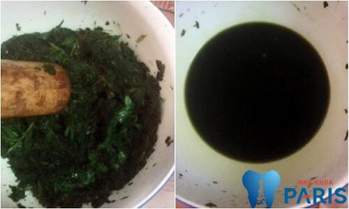 4 Cách chữa hôi miệng bằng lá ổi Tại Nhà Hiệu Quả TẬN GỐC 2