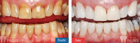 Có thể tẩy trắng răng không đều màu không? Bác sỹ tư vấn 3