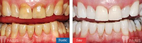 Tại sao sau khi tẩy trắng răng lại không đều màu