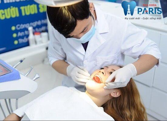Lấy coa răng để điều trị hôi miệng