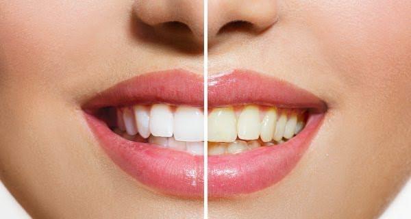 Những tác hại của việc tẩy trắng răng bạn CẦN PHẢI BIẾT 2