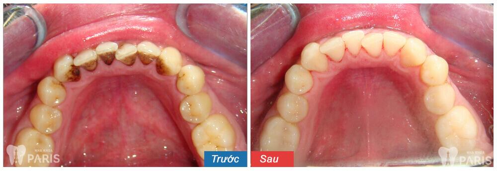 Lấy cao răng không làm trắng răng
