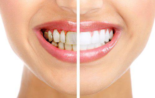 Màu răng bị xạm do sử dụng nước lá lốt thường xuyên