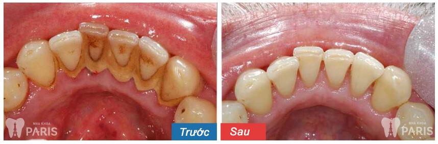 Lấy cao răng loại bỏ vi khuẩn gây mùi