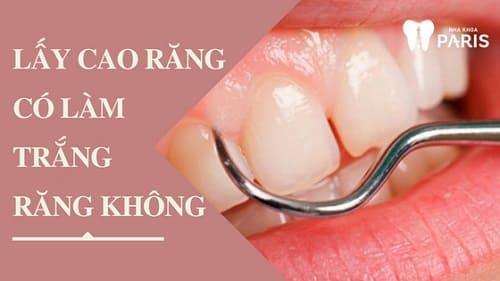 Lấy cao răng có làm trắng răng không? Giải đáp từ chuyên gia 1